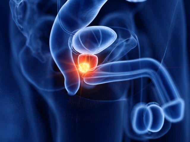 Nubeqa® (Darolutamid) erhält EU-Zulassung als neue Behandlungsoption beim nicht-metastasierten CRPC