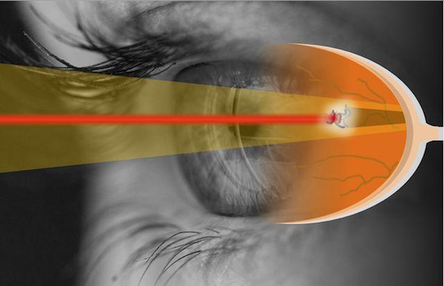 Laserbehandlung von Floatern soll optimiert werden