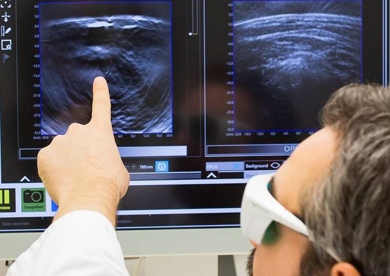 Hochauflösende 3D-Ansicht des Tumorinneren: Optoakustische Mesoskopie visualisiert Gewebemuster