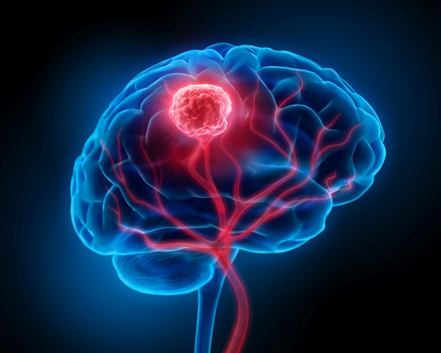 Hirntumoren: Präzise Charakterisierung von Immunzellen