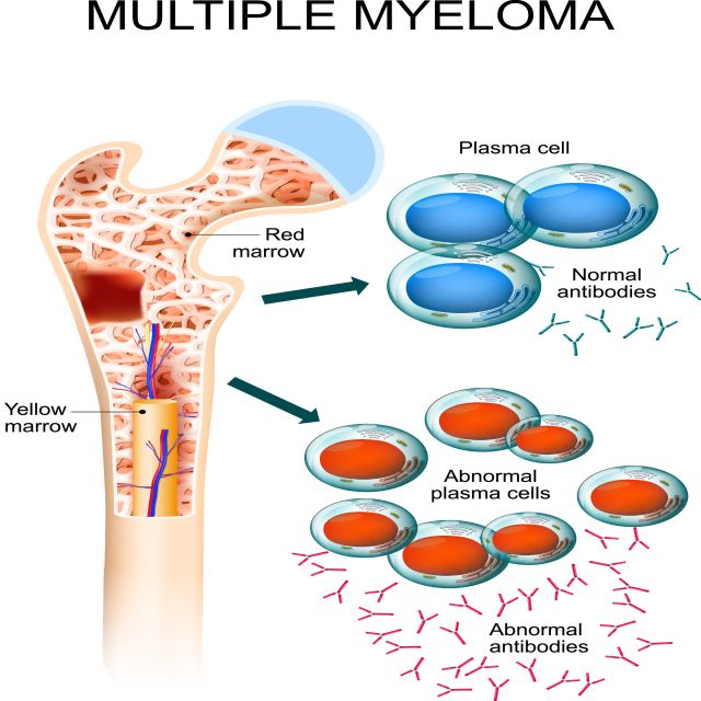Highlights beim Multiplen Myelom