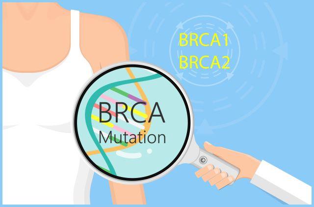 Rekrutierende Studie: Rank-Ligand-Inhibition zur Prävention von Brustkrebs bei BRCA1-Mutation