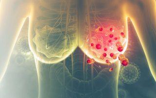 Neue Methode zur Vorhersage des Erfolgs einer Brustkrebstherapie gibt mehr Sicherheit