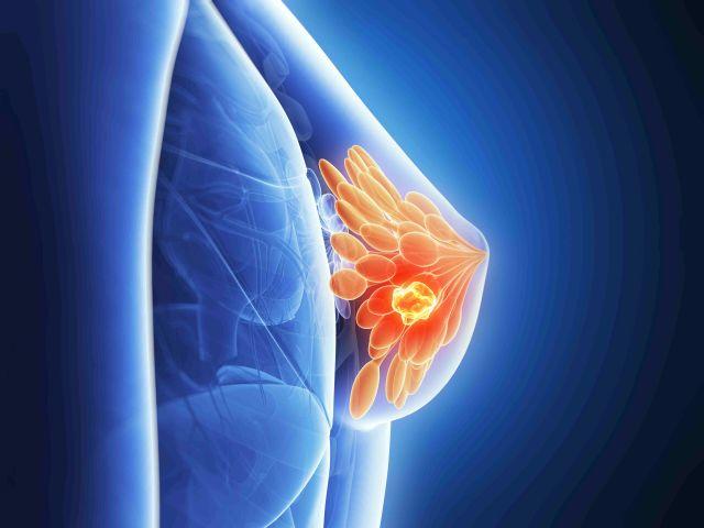 Brustkrebs: Neuer Subtyp erweitert Behandlungsmöglichkeiten
