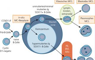 Mantelzell-Lymphome