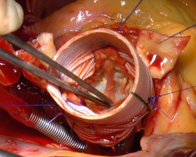 Klappenerhaltende Aortenklappenchirurgie